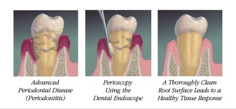 Teeth Cleaning for Periodontitis with Periscopy